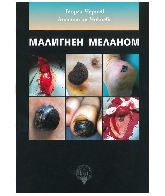 Малигнен меланом
