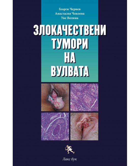 Злокачествени тумори на вулвата