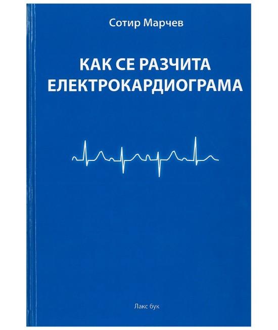Как се разчита електрокардиограма