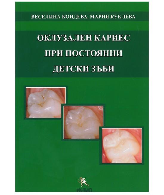 Оклузален кариес при постоянни детски зъби