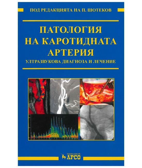 Патология на каротидната артерия. Ултразвукова диагностика и лечение